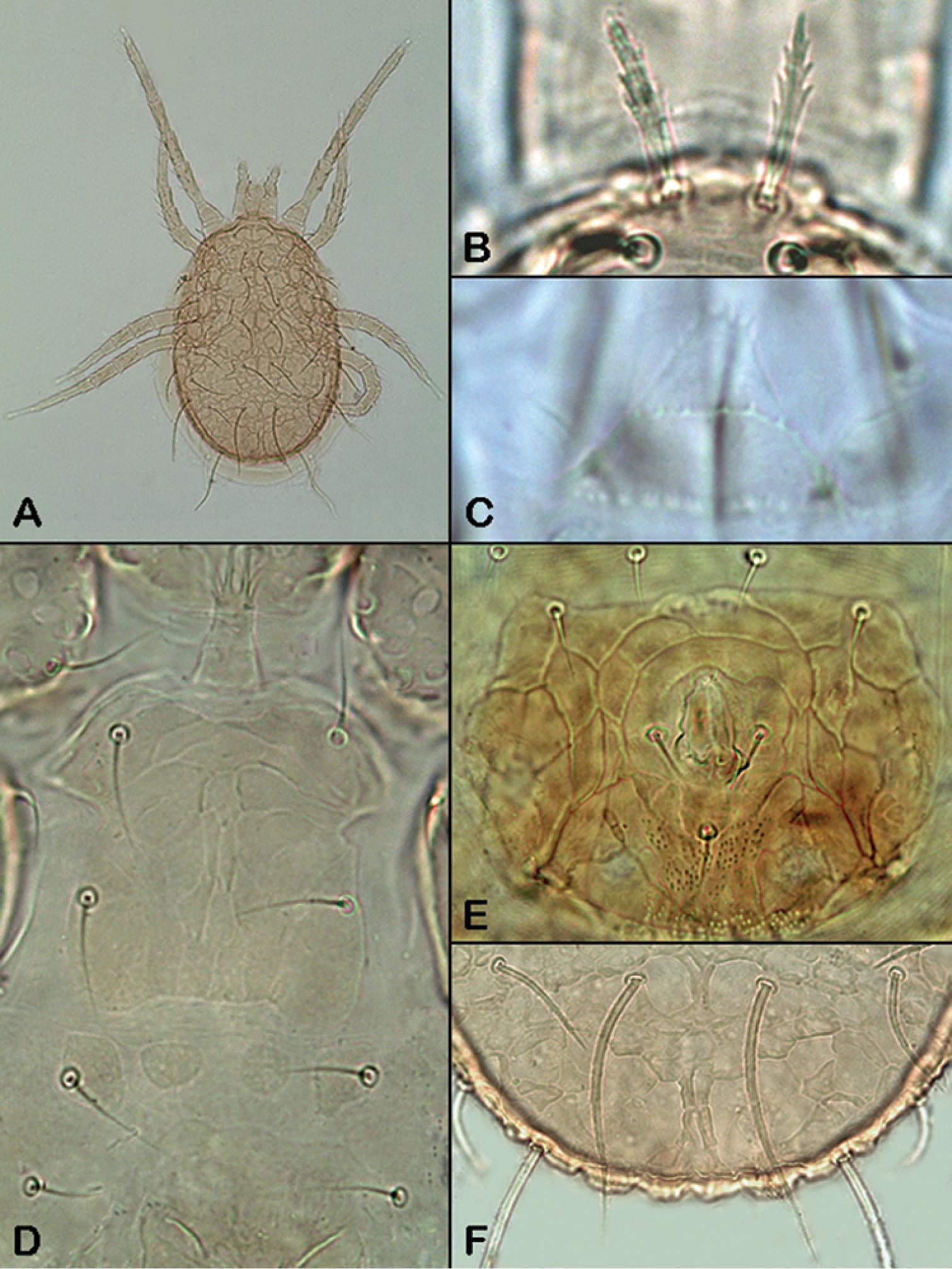 A revision of the family Ameroseiidae (Acari, Mesostigmata