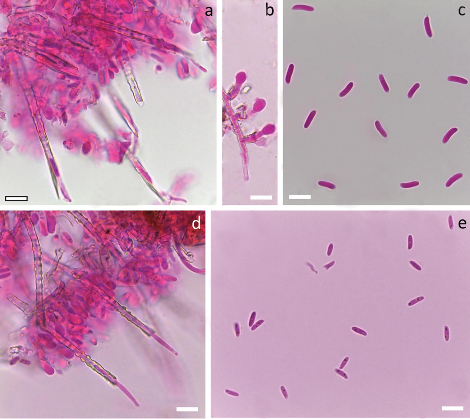 Short-spored Subulicystidium (Trechisporales, Basidiomycota): high